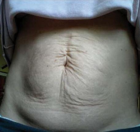 Abdomen-Skin-Laxity-1-before