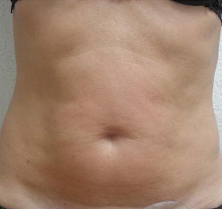 Abdomen-Skin-Laxity-3-after