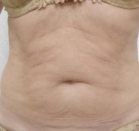 Abdomen-Skin-Laxity-3-before