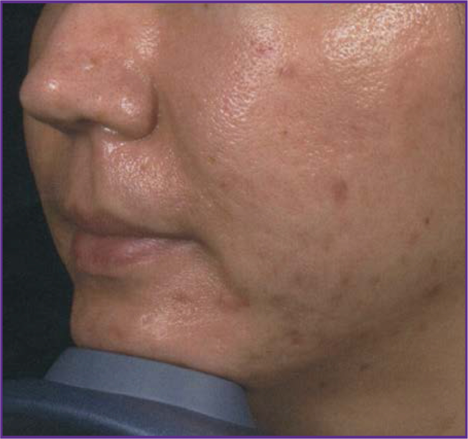 Fractional-Skin-Resurfacing-02-after