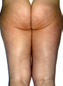 LPG-Cellulite-Smoothing-Treatment-After