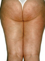 LPG-Cellulite-Smoothing-Treatment-Before