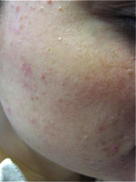 LDM-Acneformed-skin-structure-after-1-LDM