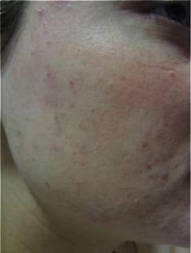 LDM-Acneformed-skin-structure-after-2-LDM