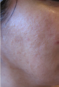 Rough Skin After 2 Microdermabrasions and 4 LDM® Sessions