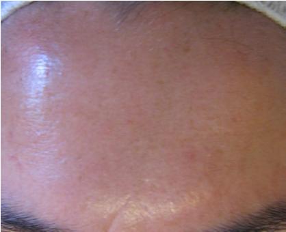 Skin Rejuvenation After 4 LDM® Sessions